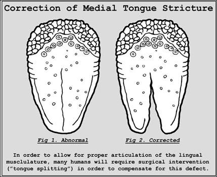 Kielenhalkaisu